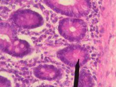 1280px-Human_Paneth_cells